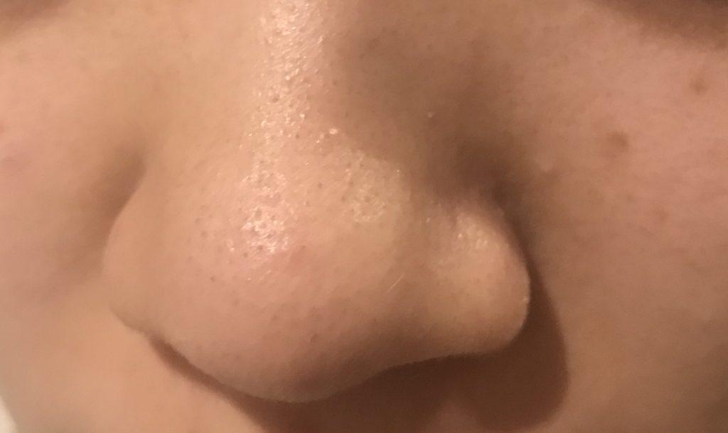 新どろあわわで洗顔した後の小鼻