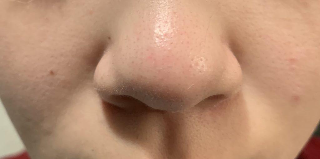 新くろあわわで洗顔した後の小鼻